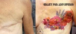 Cover Cicatrice seno
