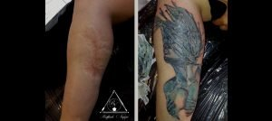 Cover Cicatrice Polpaccio