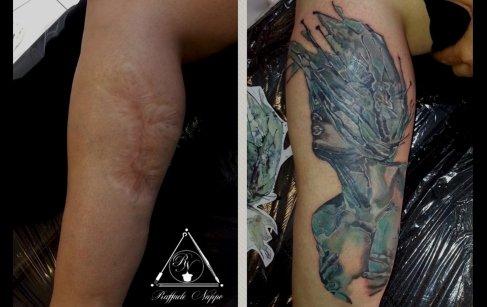 Copertura cicatrice polpaccio
